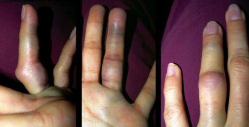 Посиневшие пальцы