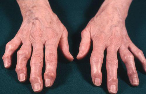 Деформированные пальцы