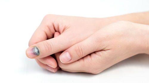 Почерневший палец
