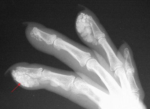 Кальцификация пальцев