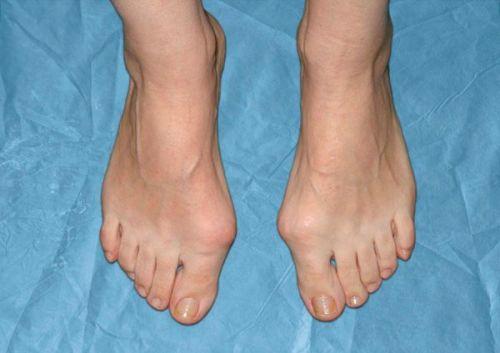 Шишки на пальцах ноги