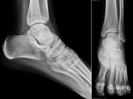 Рентген-снимок ноги