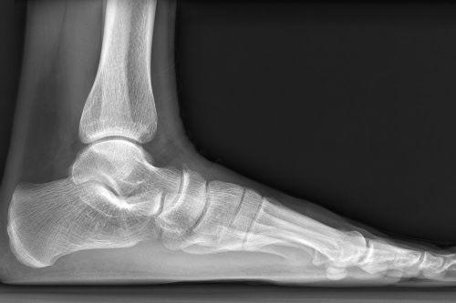 Рентген-снимок стопы