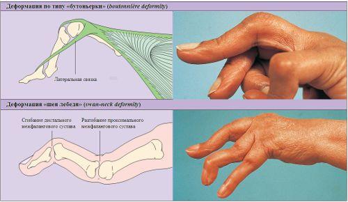 Деформации пальцев