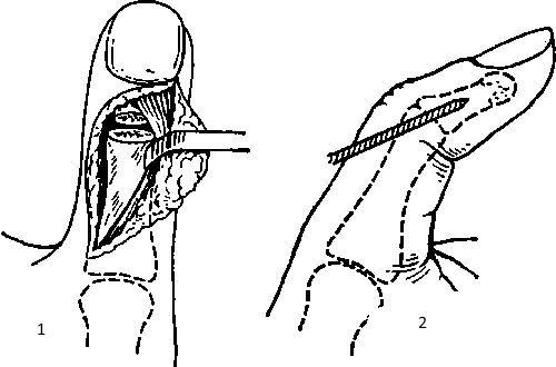 Операция на пальце
