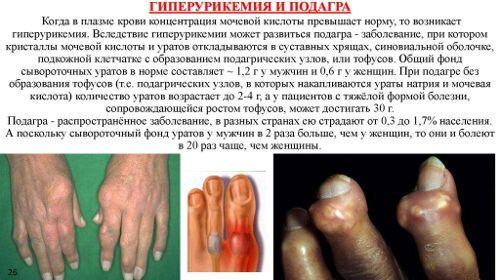 Пальцы при подагре