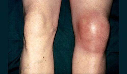 Гнойное воспаление колена
