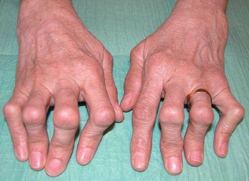 Артрит на пальцах руки