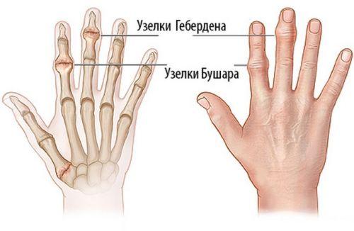 Узелки на суставах пальцев