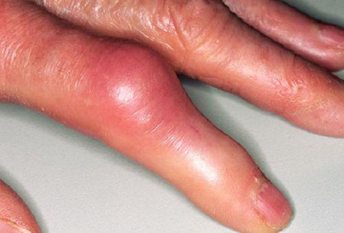 Пальцы, пораженные подагрическим артритом