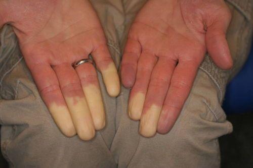 Белые кончики пальцев