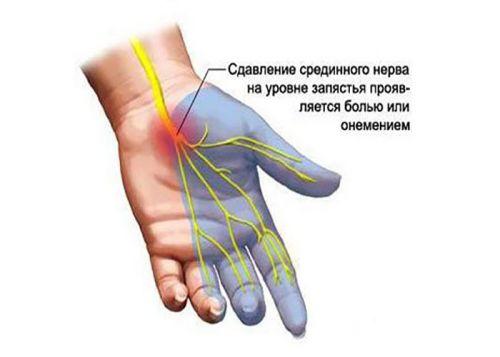 Карпальный синдром