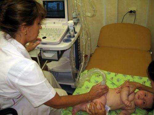 УЗИ тазобедренного сустава у младенца