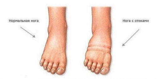 Тендовагинит стопы