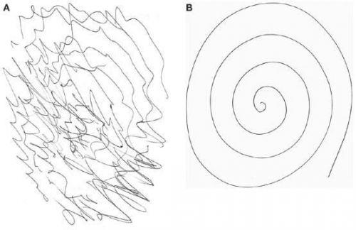 Тест с начертанием спирали