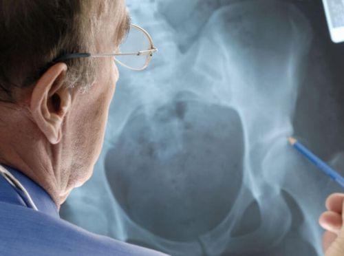 Рентгенография тазобедренных суставов