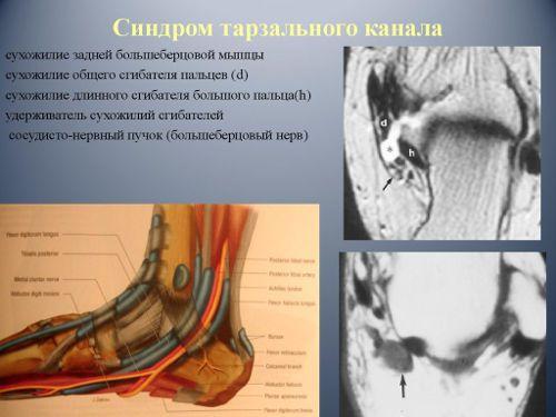 Синдром тарзального канала