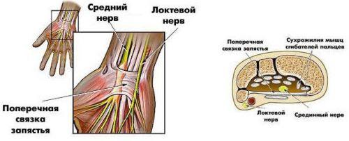 Туннельный синдром запястья симптомы