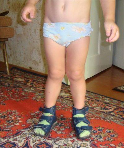 Кривые ножки