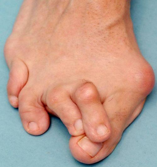 Покрученные пальцы