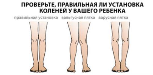 Установка коленей
