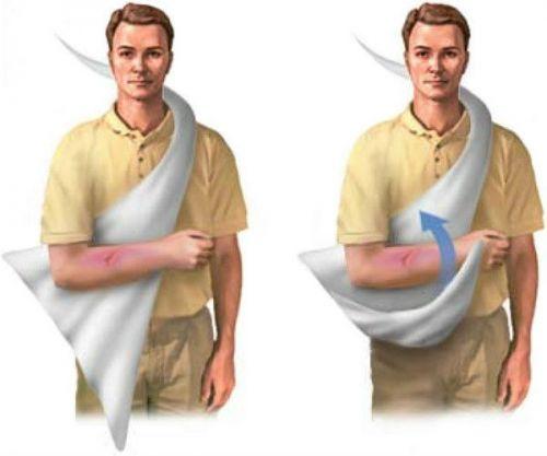 Техника наложения повязки