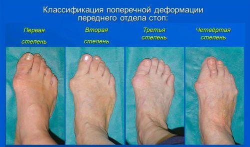 Деформация сустава большого пальца