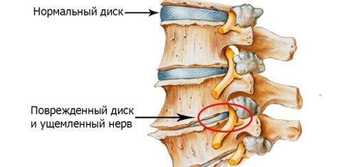 Боль в мышцах руки при переломе