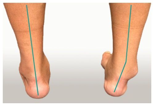 Кривая нога