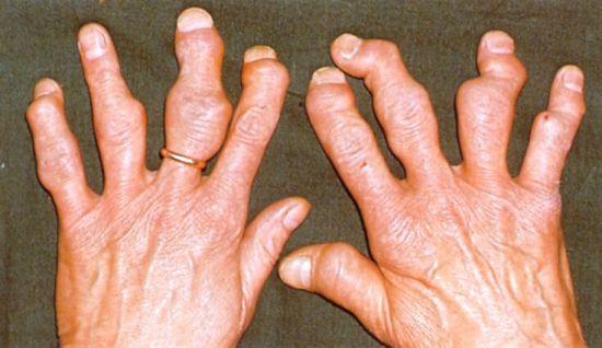 Пальцы рук при артрите