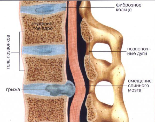 боль в поясничном отделе гинекология