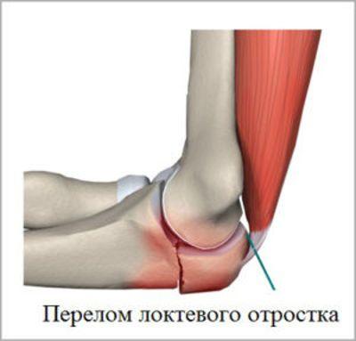 Перелом локтевого сустава
