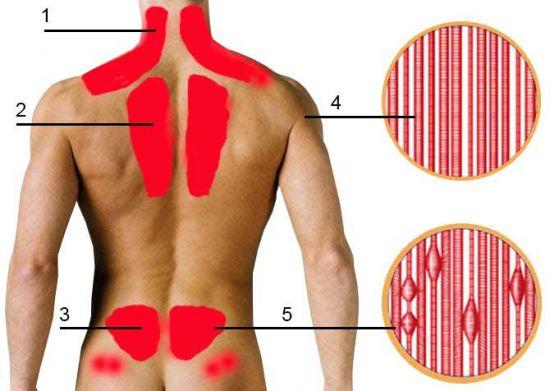 Места миозита спины