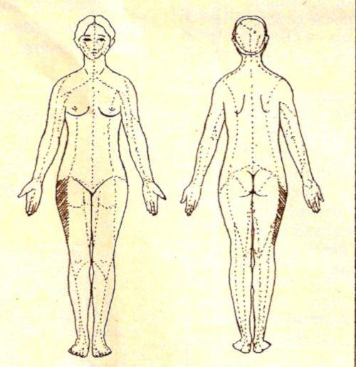 Человеческое тело, заштрихованная область на бедре