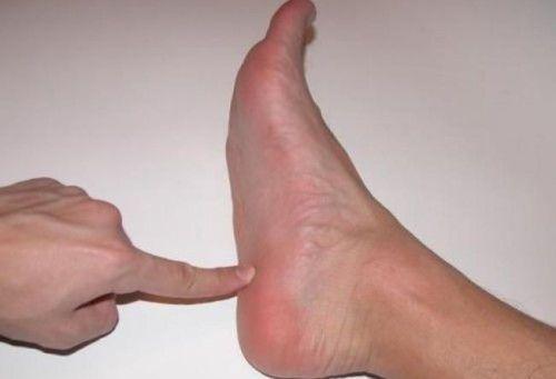 Подошва ноги