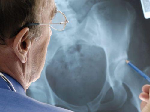 Осмотр рентген-снимка тазовых костей