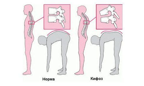 Тест на наличие кифоза