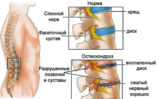 Остеохондроз поясничного отдела лечение гимнастическими упражнениями