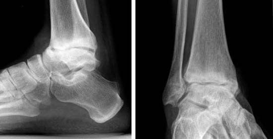 Рентген-снимок голеностопа