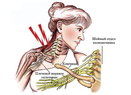 Плечевой нерв