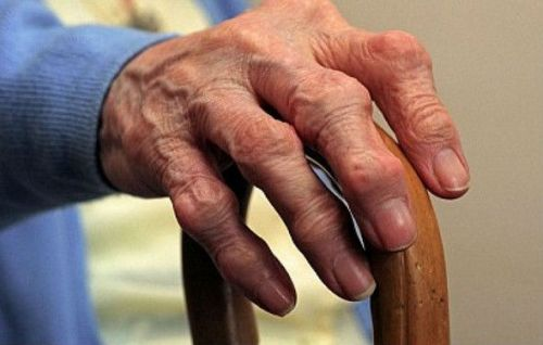 Рука, пораженная артрозом