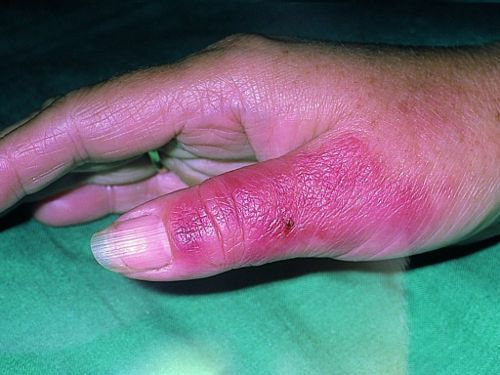 Боль в суставе мизинца руки