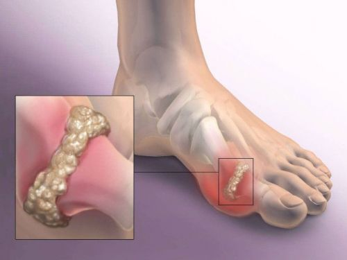 Отложение солей на пальце ноги