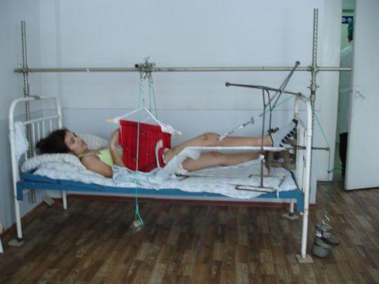 Фиксация ноги при переломе седалищной кости