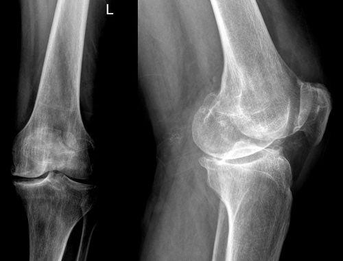 Рентген-снимок коленного сустава