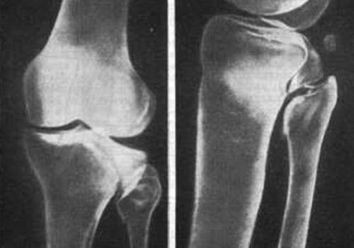 Рентген-снимок с переломом кости