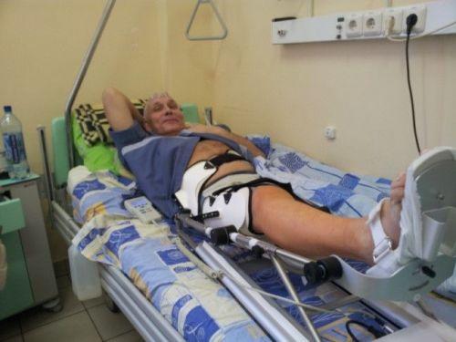 Мужчина с переломом ноги в палате