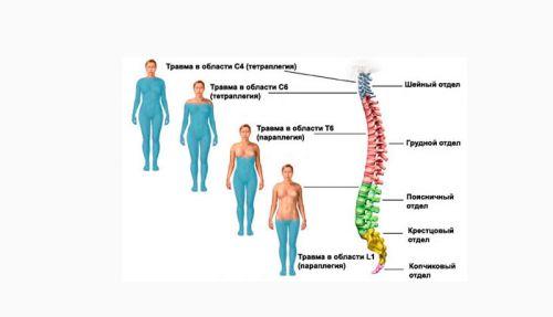 Паралич тела при переломе позвоночника