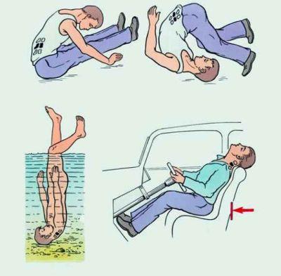 Перелом шеи