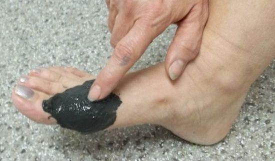 Компресс на ногу